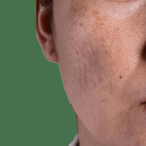 MÉLASMA CENTRE ESTHÉTIQUE : DOCTEUR NASSER MADI médecine esthétique Genève