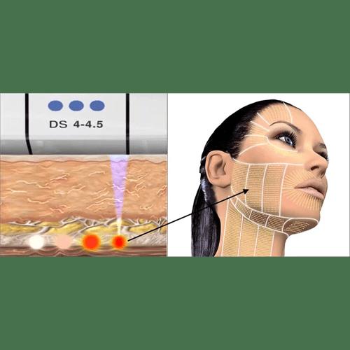 Ultherapy Ultrasound Treatment: CENTRE ESTHÉTIQUE : DOCTEUR NASSER MADI
