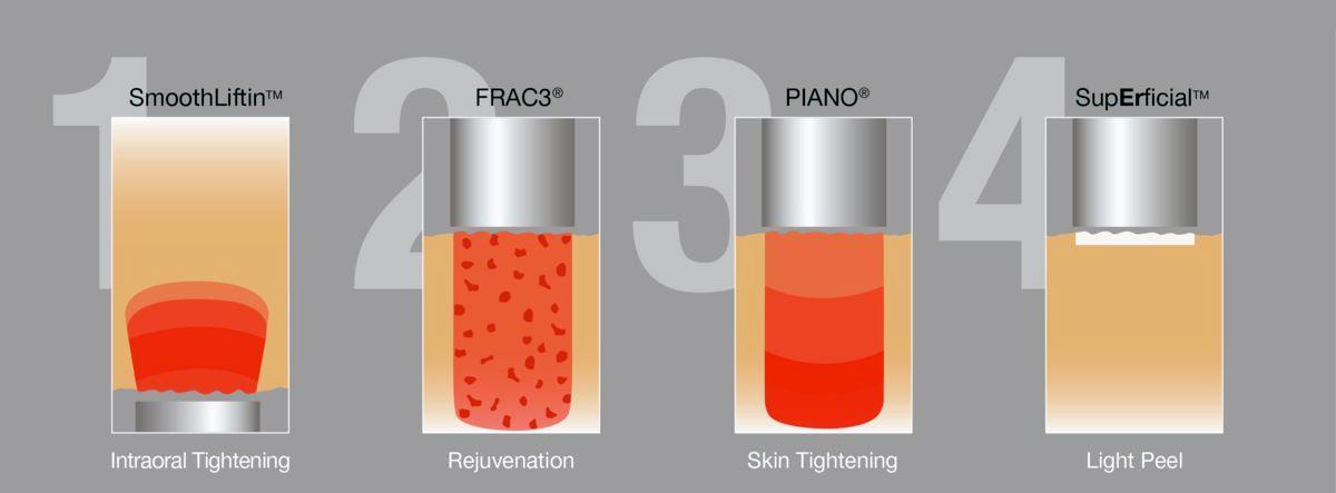 Fotona 3 D et 4D® face-lift: Er-YAG and Nd-YAG - SMOOTHLIFTIN - FRAC3 - PIANO - SupErficial