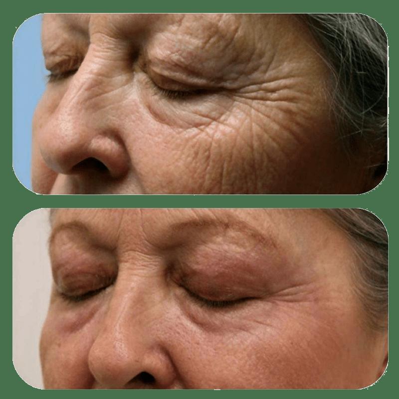 PlexR traitement excès de peau au niveau des paupières ridules de la lèvre supérieure