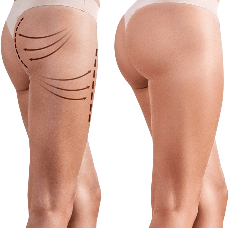 SCULPTRA - Nasolabial folds or smile lines -Marionette lines - Chin wrinkles - Temples - Under the eyes - Jawline - Chest -Cellulite - Brazilian butt-lift